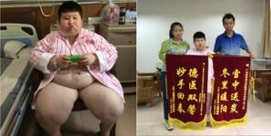 14岁小胖墩缩胃手术后减重100斤