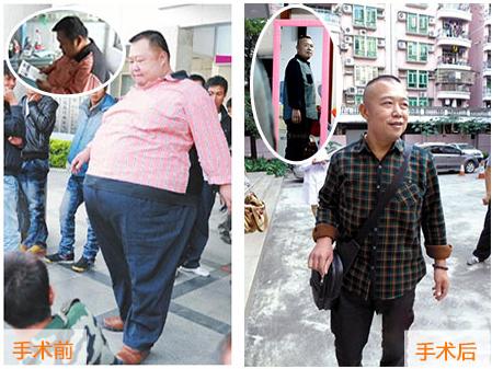 """""""广西首胖""""温必善2年减重300斤"""